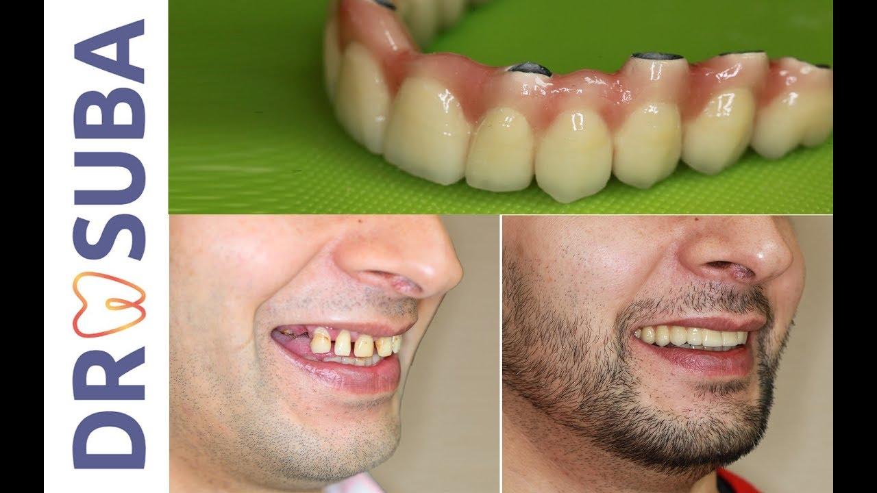 Implant dentaire : une dent artificielle fiable ?